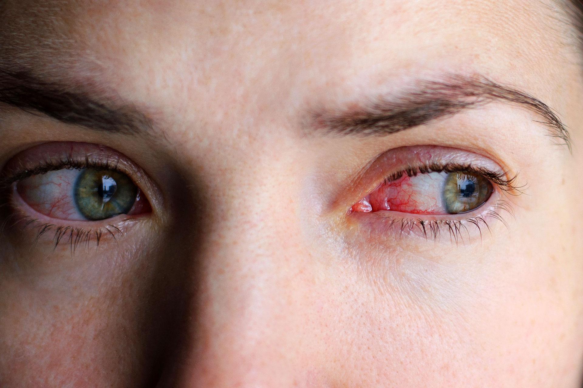 Yeux gonflés, cernés ; rougeur et sensation de brûlure oculaires
